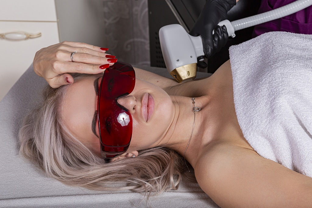 Armpit Dynamic Laser Hair Removal